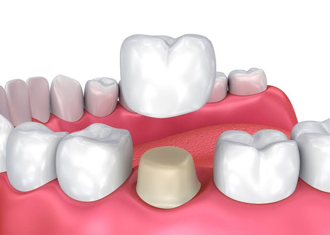 Crowns and Bridges Treatments in Redlands