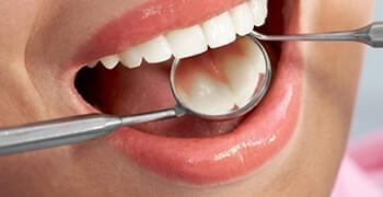 Teeth-Whitening-service